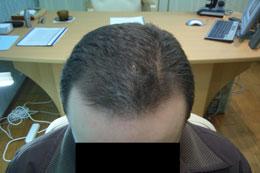 Чем можно лечит выпадение волос
