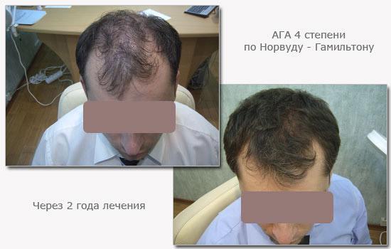Личностей азиатских посоветуйте таблетки для роста волос нужно