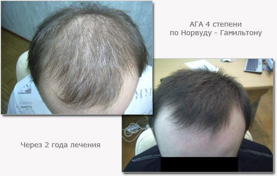 Угри выпадение волос перхоть слоение ногтей